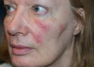 Rosacea Support Community • Need opinions--rosacea/seb ...